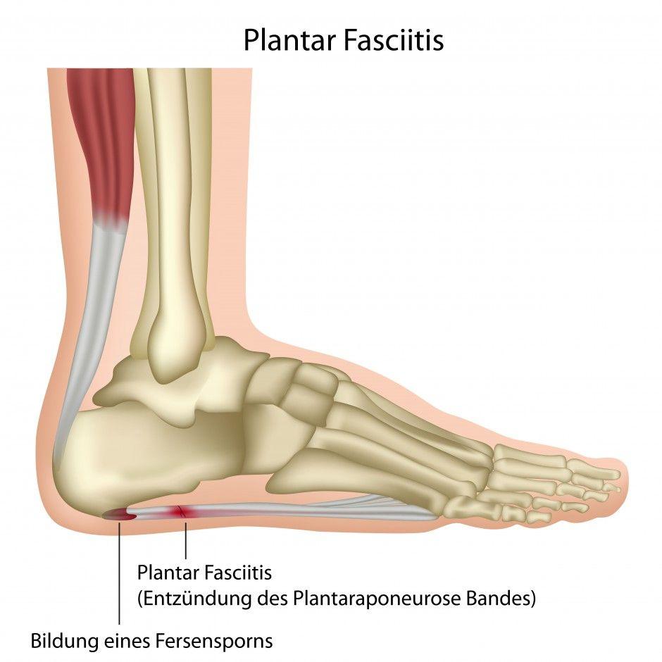 plantar fasciitis. | miscellaneous | pinterest | plantar fasciitis