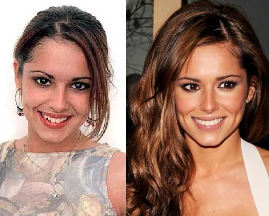 Cheryl Cole B4 And After