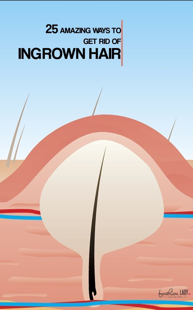 how to get rid of ingrown hair scars pubic
