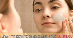 reduce pimple swelling overnight