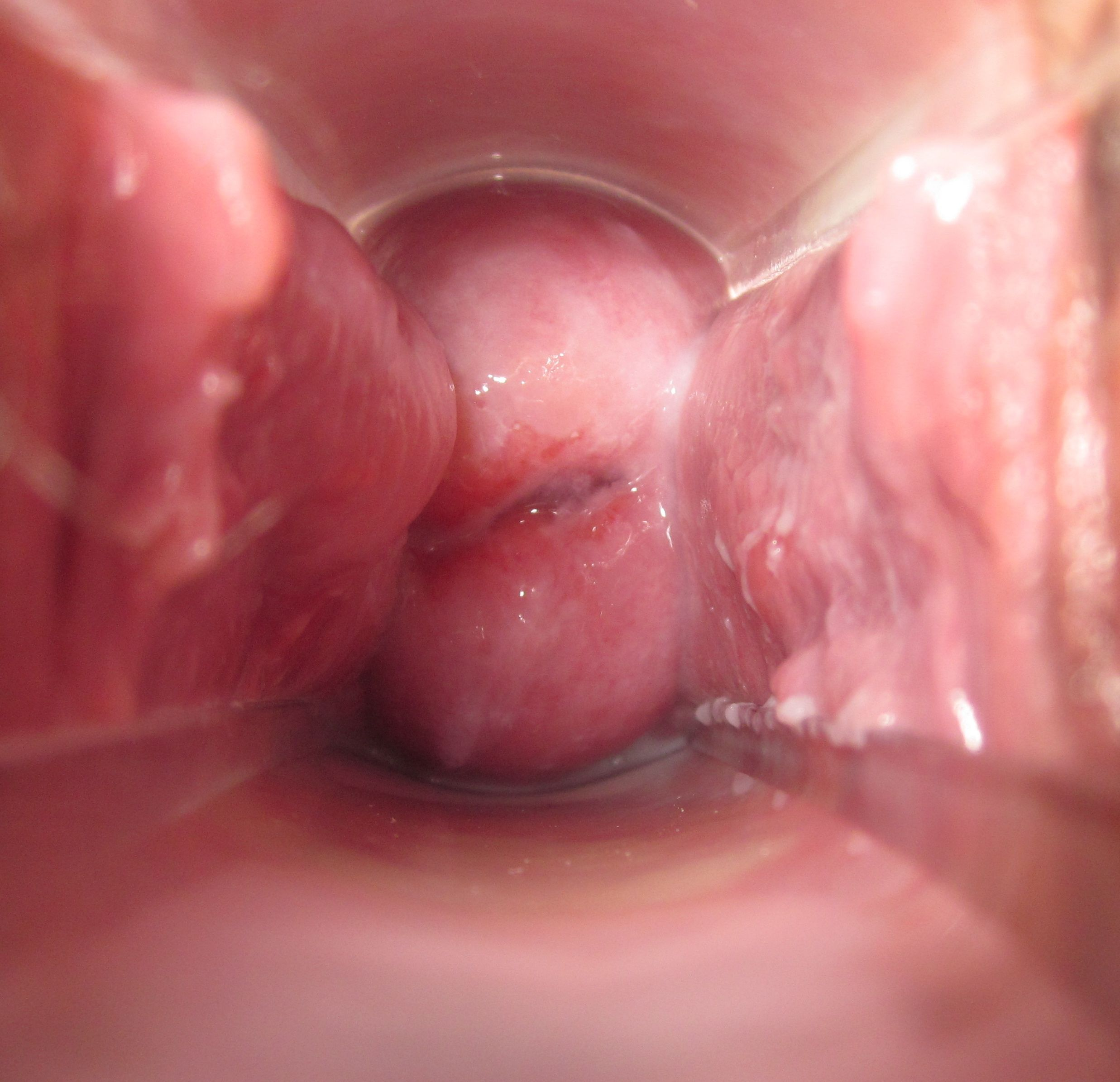 Cervical Cancer Slideshow