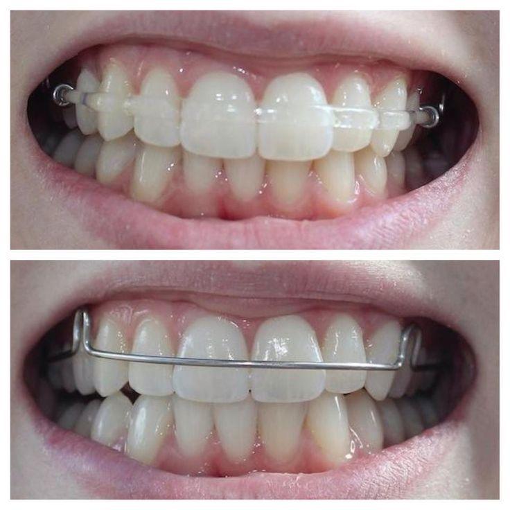Clear retainers Teeth straightening beyond braces