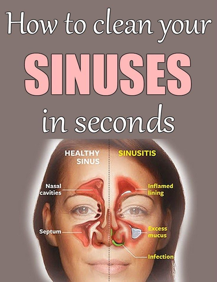 How to clean your sinuses in seconds - www.beautyarea.net: | Home ...