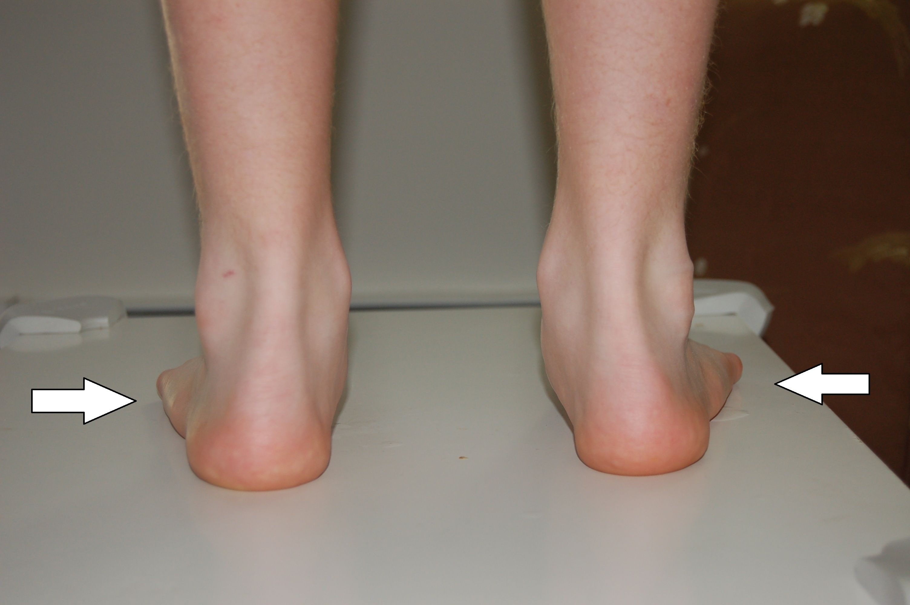 Is Your Foot and Ankle Pain Due to Tendonitis? | Reflexology