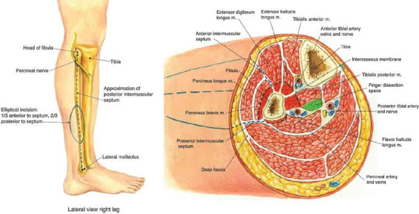 Resultado de imagen de cross sectional anatomy | Anatomía seccional ...