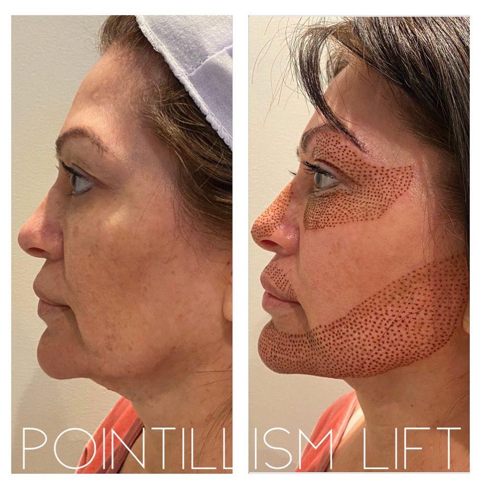 Plasma Fibroblast Laser Skin Treatment Skin Tightening Treatments Laser Skin Tightening