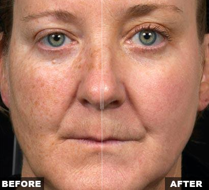 Reduce the impact of Acne Scars, Skin Discoloration ...