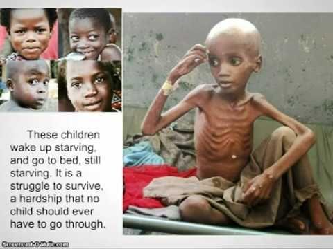 Child Hunger in Africa | Child hunger, African children, Children