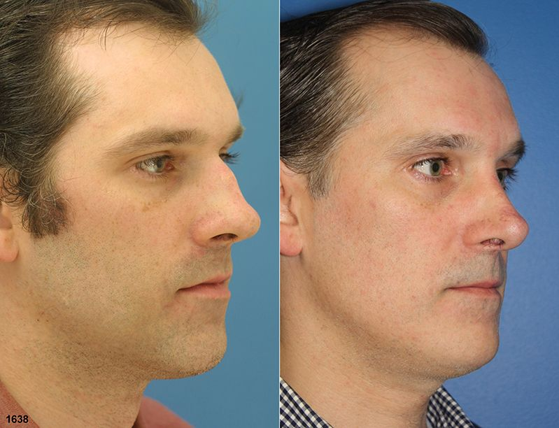 This 31 year old male wanted the bump removed from his nose