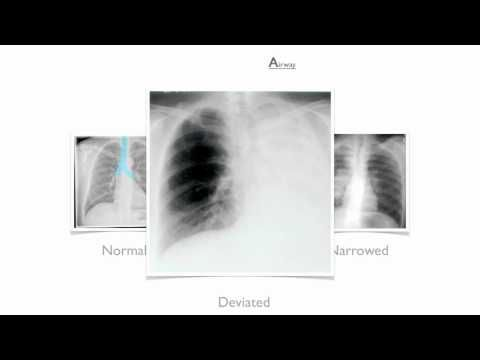 Medical Student Apps Chest X Ray Interpretation For Beginners With Images Student Apps Medical Students X Ray