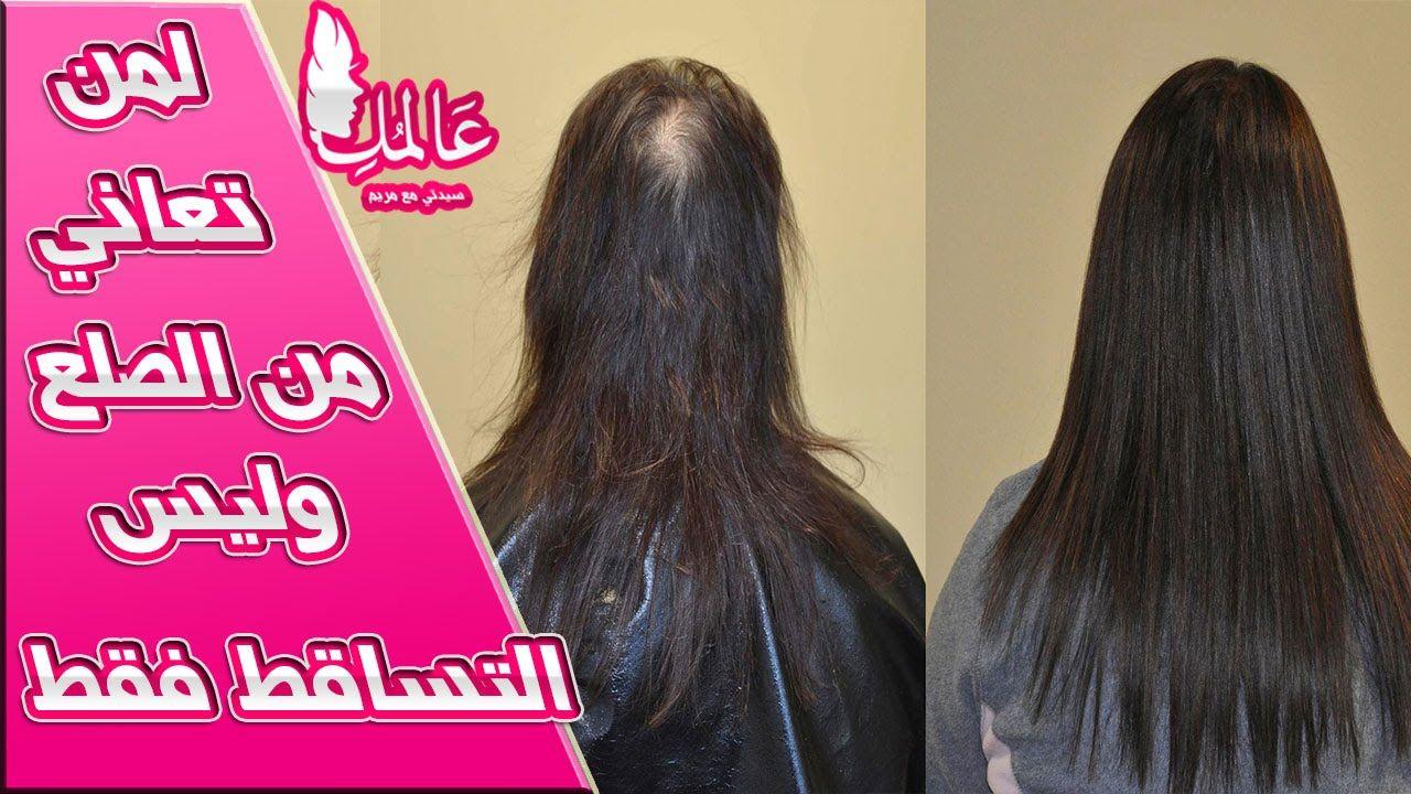 لمن تعاني من الصلع وليس التساقط فقط والله مجربة Youtube Hair Long Hair Styles Hair Styles