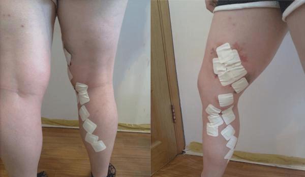 Tratamentul venei picioarelor