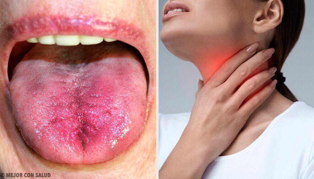 sår i munnen huskur
