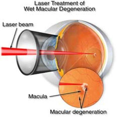 Effective Treatment For Macular Degeneration Medical Information