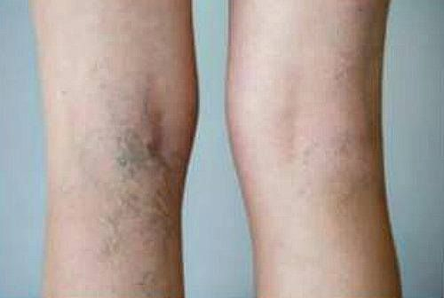 What Are Spider Veins Spider Veins Are The Smaller Pink And Blue