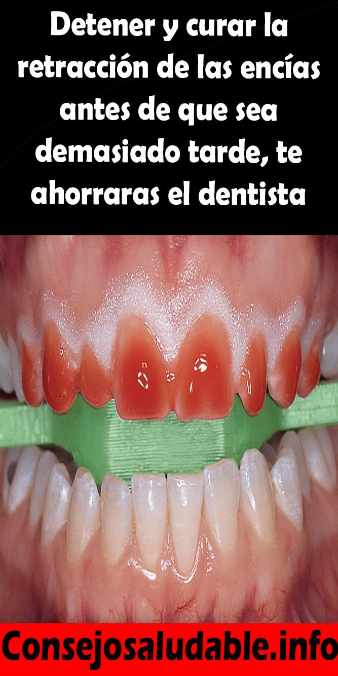 Detener Y Curar La Retracción De Las Encías Antes De Que Sea Demasiado Tarde Te Ahorraras El Dentista Dentista Curar Consejos Para La Salud