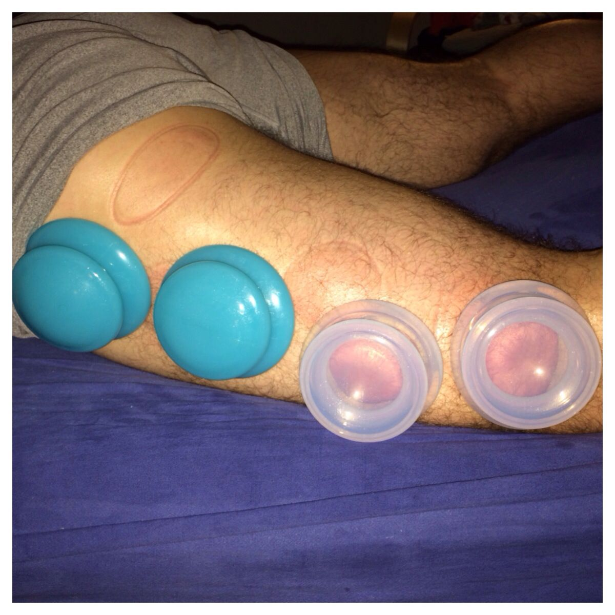 Cupping the IT band   Cupping therapy Cupping massage It ...