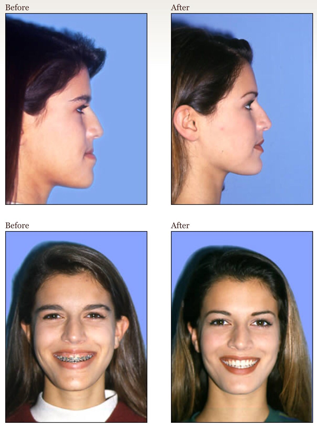 The upper jaw was repositioned upward and forward and the lower jaw ...