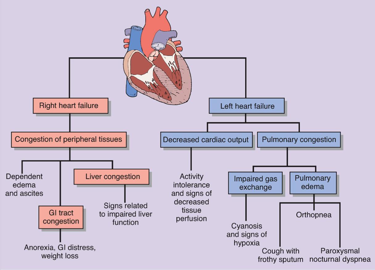 Popista Heart Failure Nursing Heart Failure Cardiology Nursing