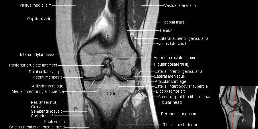 Mri Knee Anatomy Knee Pinterest Anatomy