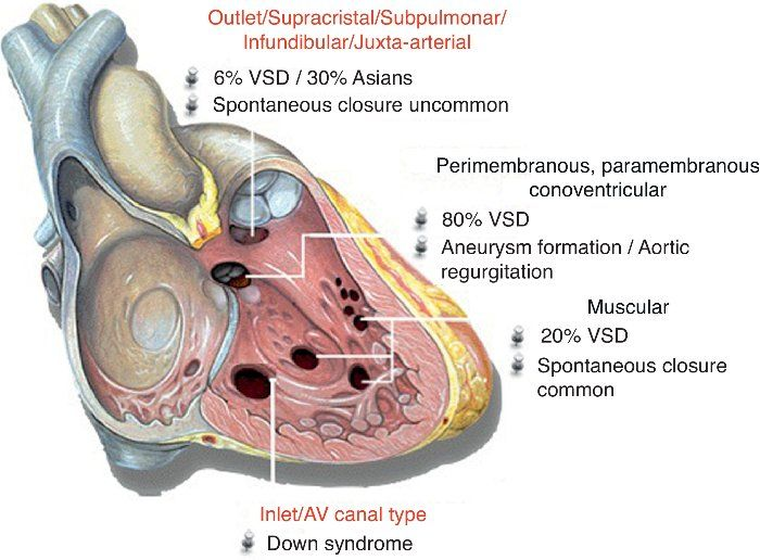 Ventricular Septal Defect Membranous Type Google Search Cardiac