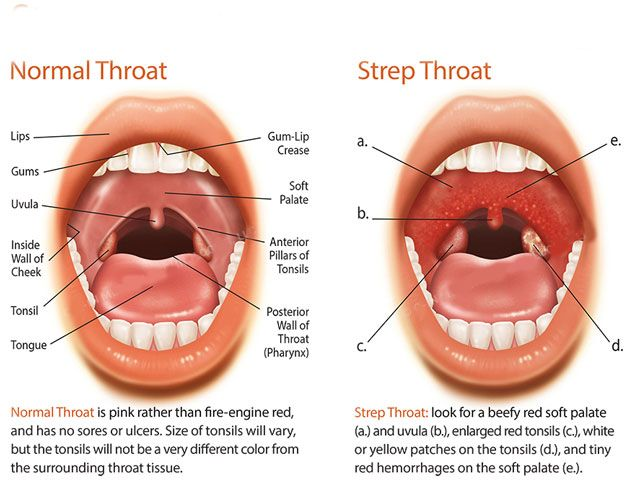 sore throat after antibiotics for strep