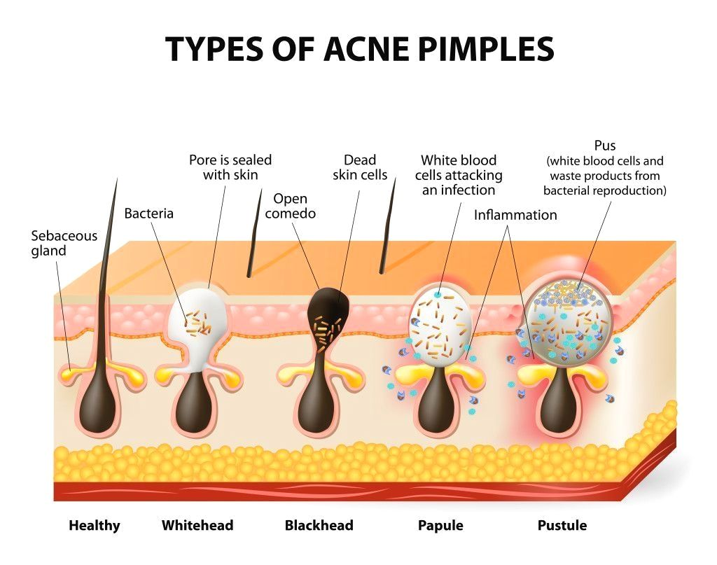 ways to get gone pimples quick at home acne diet plan