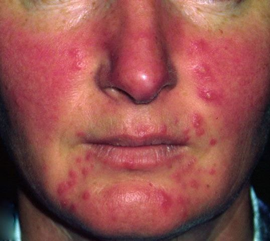 New Rosacea Gel Approved by the FDA | Rosacea, Acne rosacea, Rosacea skin  care