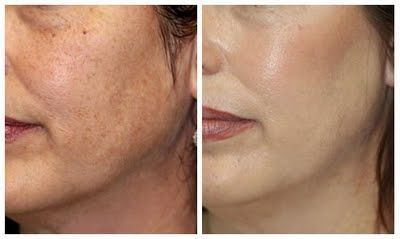 Clear difference between before and after #Dermabrasion treatment - skin rejuvenation.