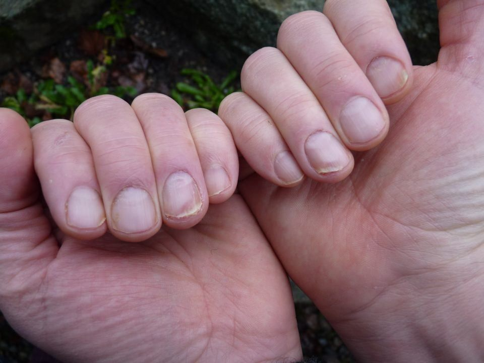 If You Have Spoon Nails, You Might Have Iron Deficiency - Here\'s How ...