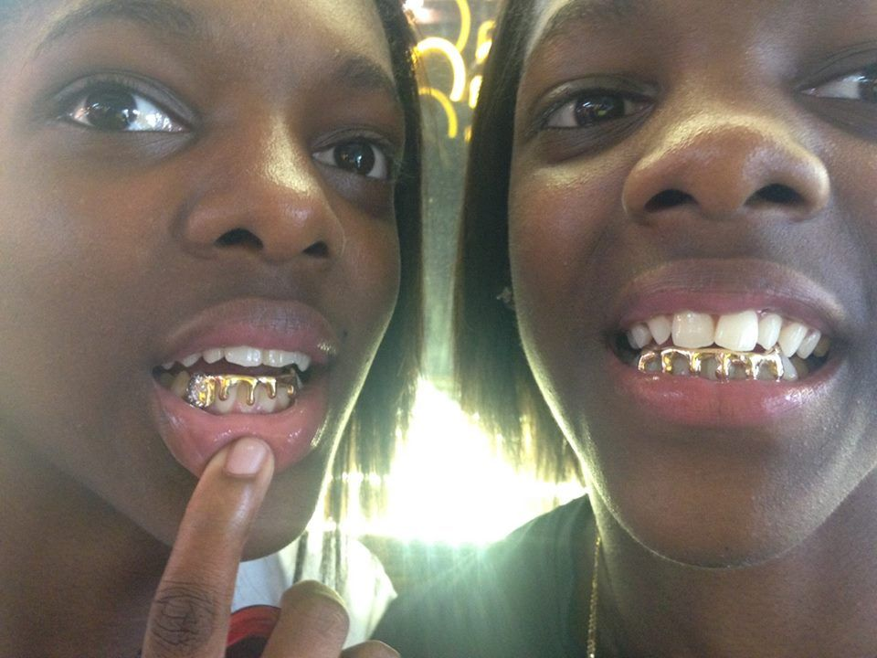 real gold grillz for women Grills in Charlotte   Starting at  40 a tooth   gold fangs and grillz. We Service Atlanta d506685d07
