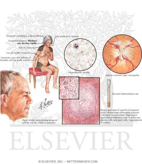 giant-cell (temporal) arteritis, polymyalgia rheumatica | giant, Skeleton