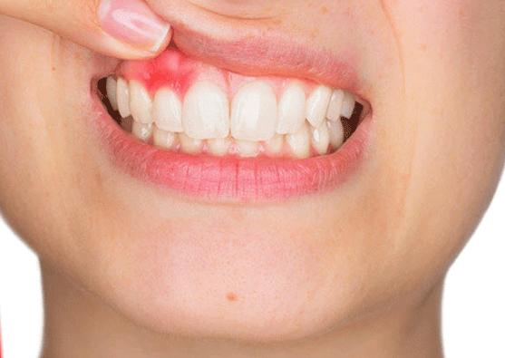 Das erste, was Sie über Zahngesundheit nachdenken, sind die Hohlräume in Ihren Zähnen. Aber…   – Can I have my Body Back Now?