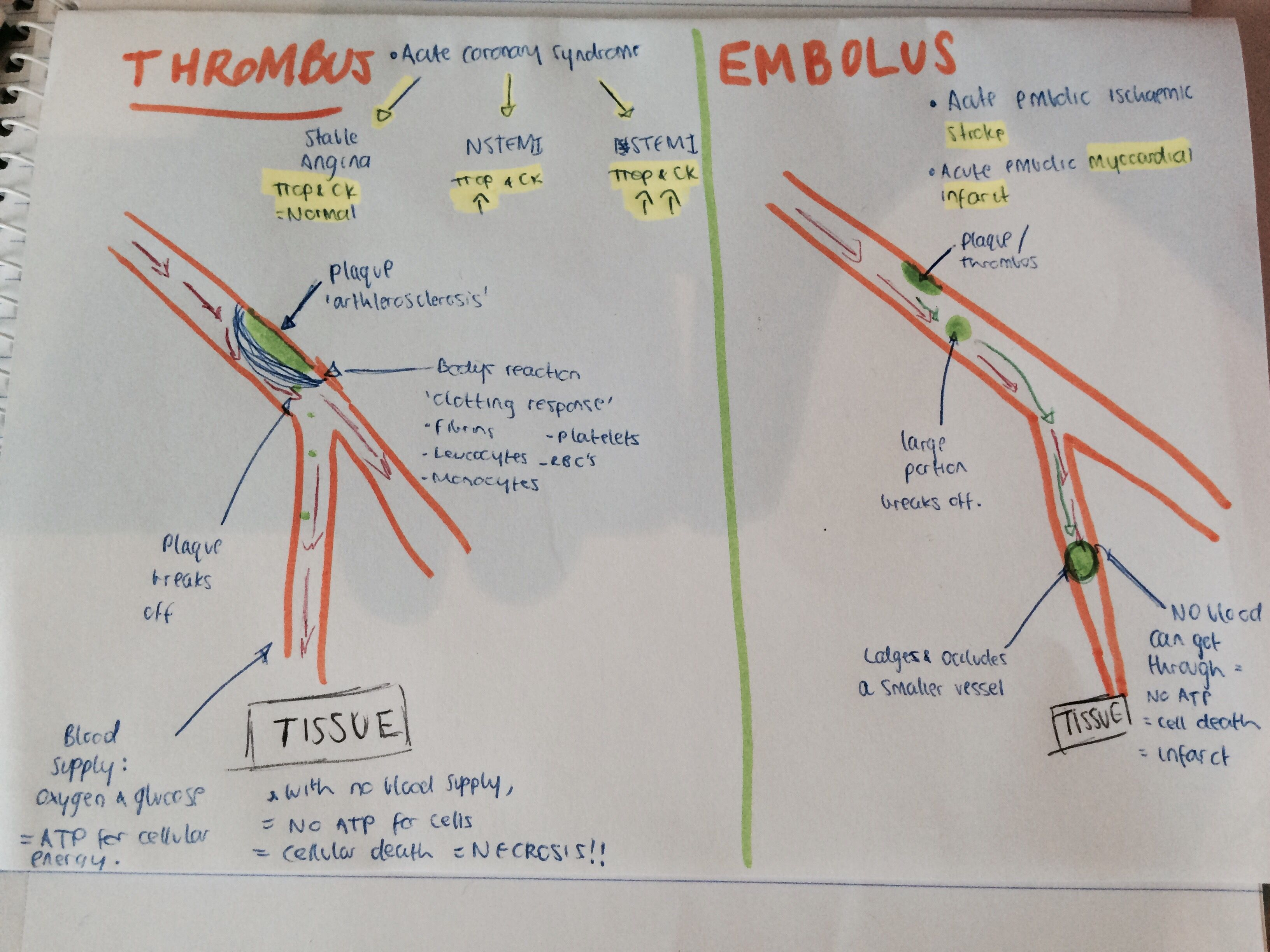 Difference between a thrombus and an embolism! Drawing diagrams is ...