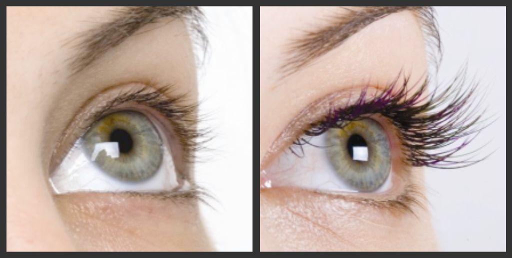 Latisse Eyelash Before And After Amazing Lashes Pinterest
