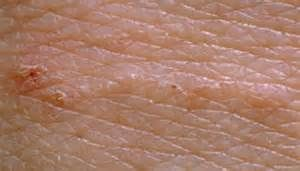 scabies tunnels on scalp - - Yahoo Image Search Results | Health