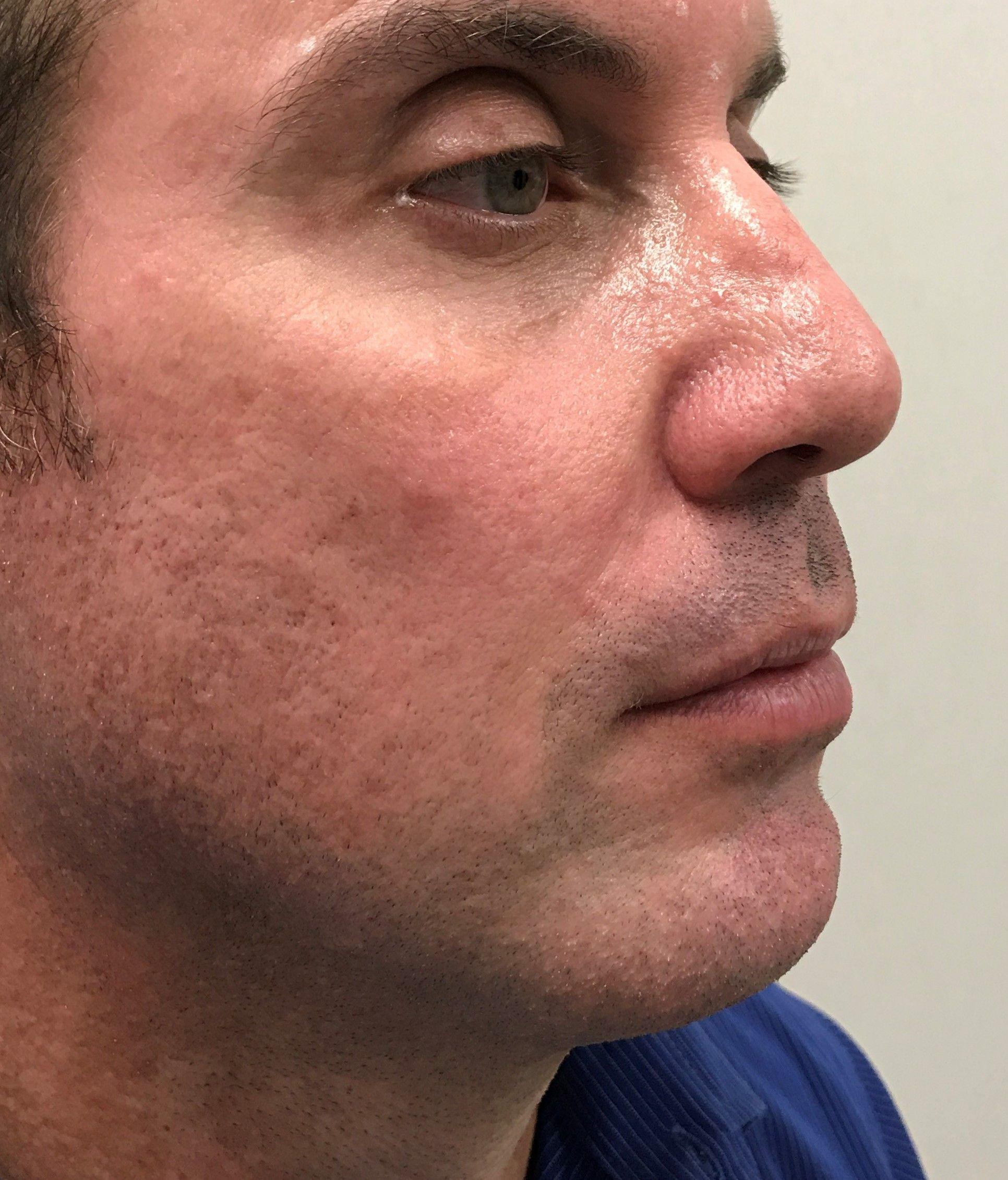 pierde greutate nasolabial folds pierderea de grăsimi homeopatie