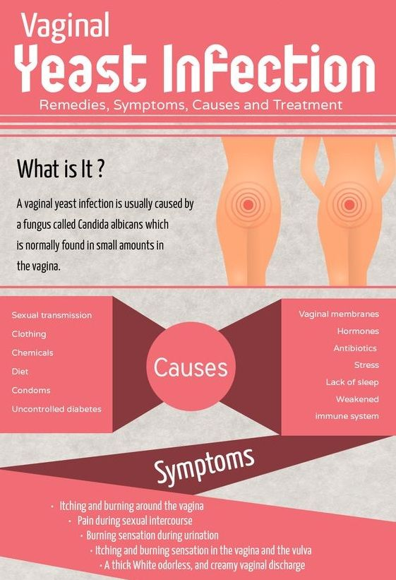 Home remedies for vaginal itching and burning