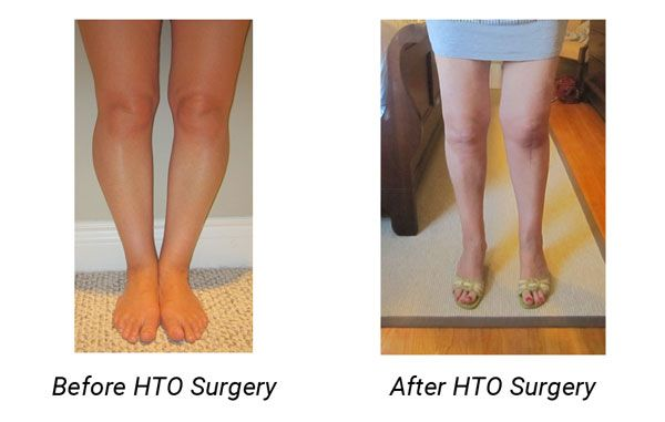 Bow Legged Before After High Tibial Osteotomy Surgery
