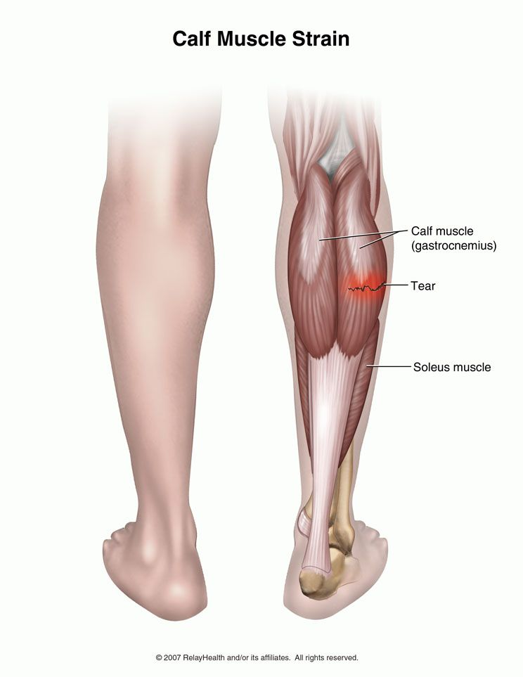 Pin On Calf Injuries