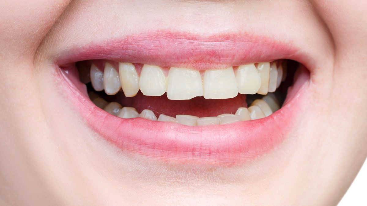 Effective ways to fix a chipped tooth in 2020 chipped