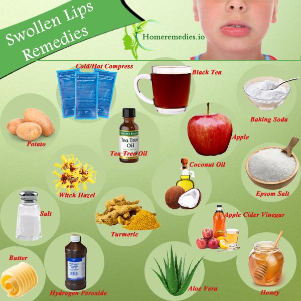1a23775304161cd50d75a58b840e9602 - How To Get Swelling To Go Down On Lip
