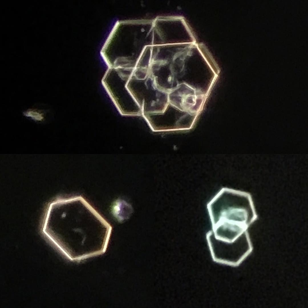 dark field microscopy