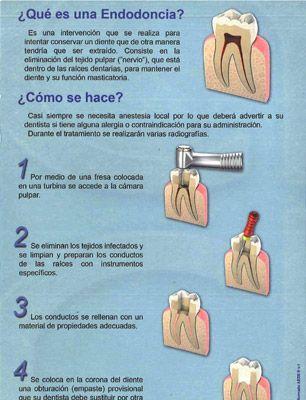 Aede Asociación Española De Endodoncia Endodoncia Clinica Dental Dental
