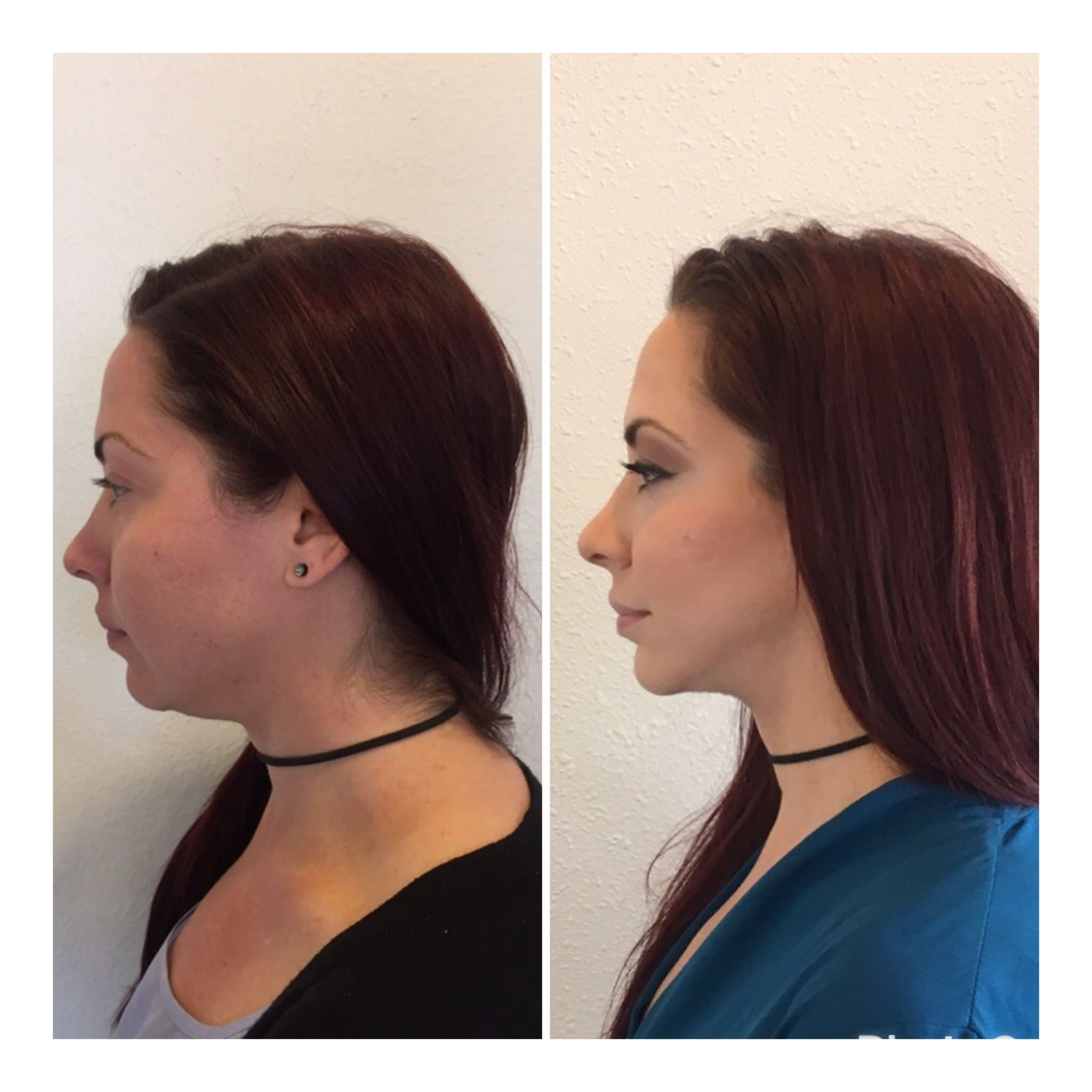 Kybella and 1 syringe of Voluma in the jawline Hair beauty