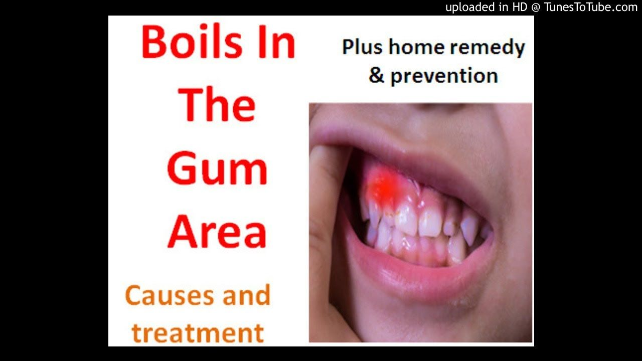 Boils On The Gum Inside The Mouth And What You Can Do About It Home Remedy For Boils Get Rid Of Boils Boil Remedies