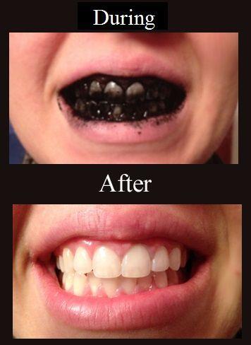 Teeth Whitening Made Easy And Naturally Teeth Natural Teeth