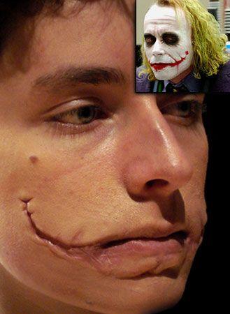 Joker Scar Prosthetics | Makeup is art | Pinterest | Joker scars ...