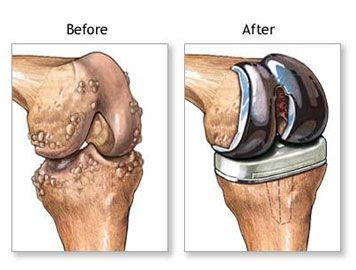 knee replacement surgery risks