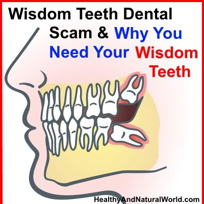 The Best Home Remedies for Wisdom Tooth Pain Relief